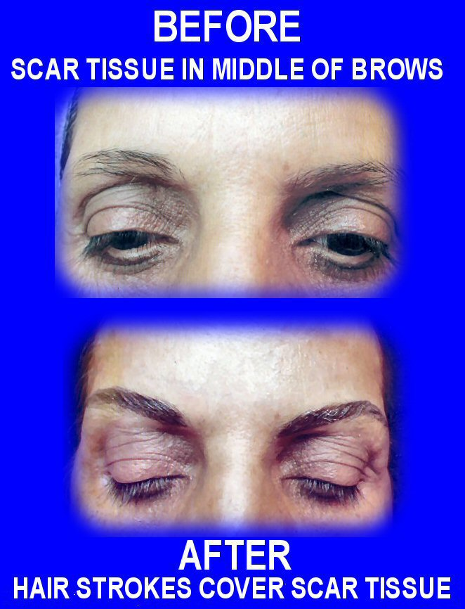 scar brows combo2.jpg